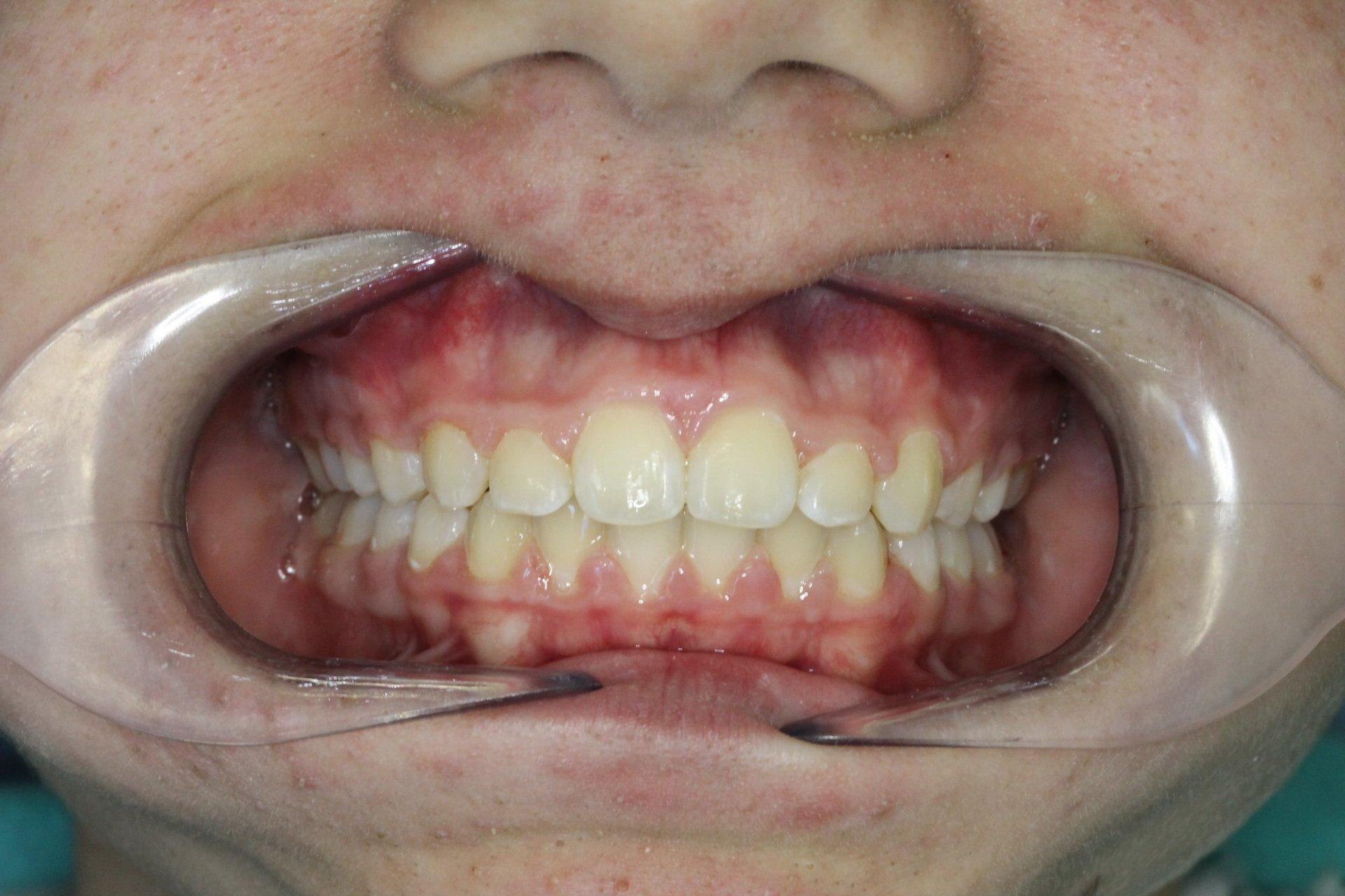 After treatment, open bite closed