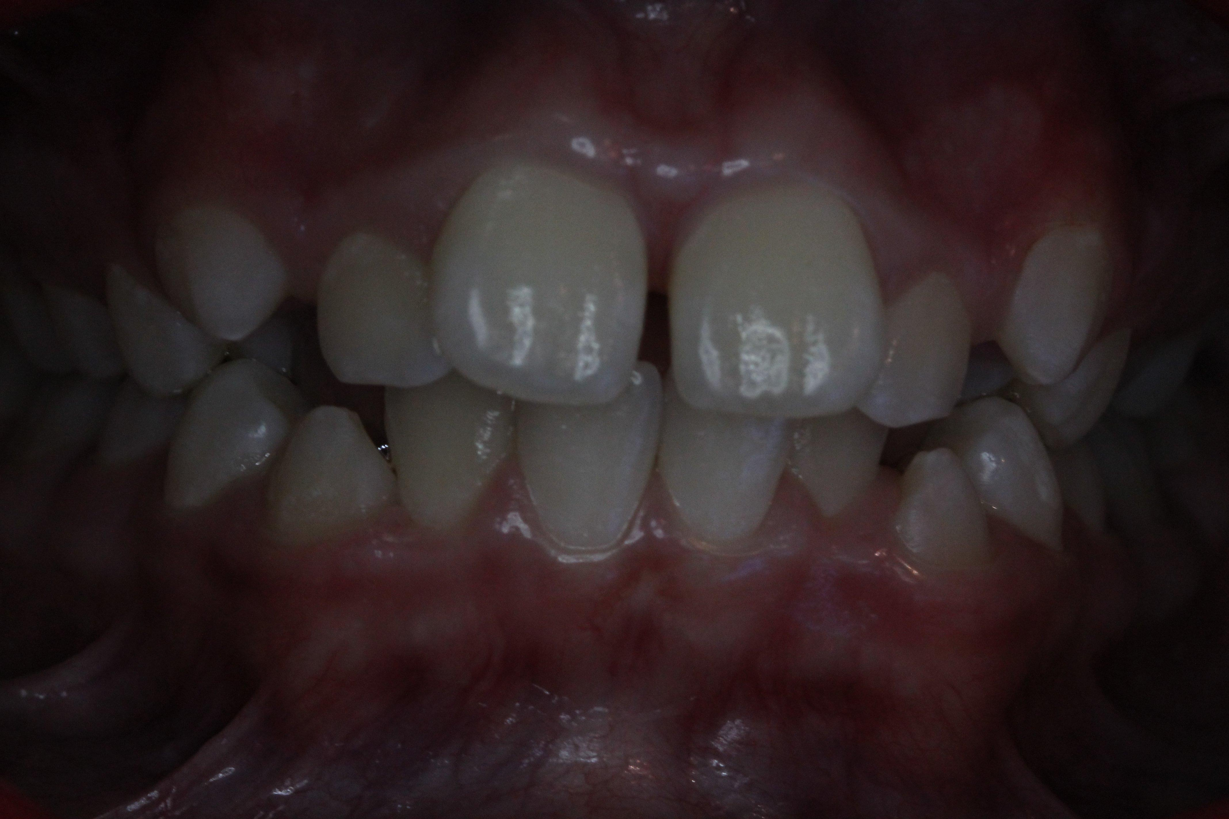 Anterior open bite with tongue thrust and severe crowding (Before)