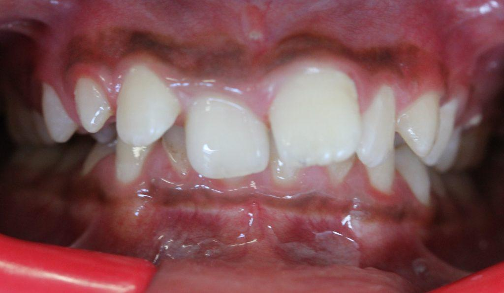 Before braces: Deep overjet and 100% overbite (lower teeth not visible)