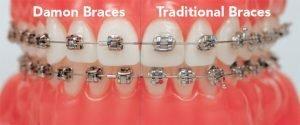 damon-braces-cost Damon Braces