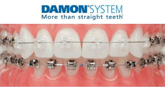 damon-system Damon Braces