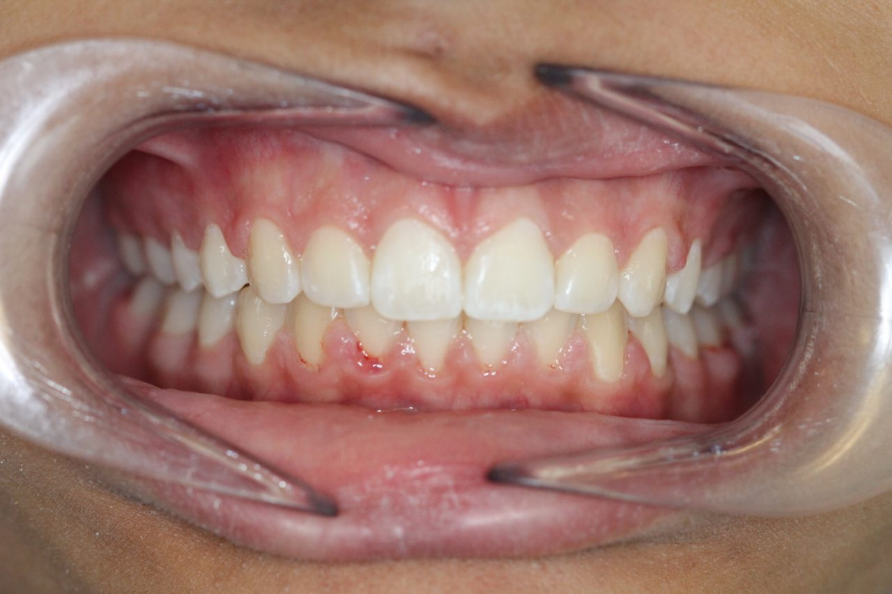 After braces, wider arch , ideal overjet and overbite, no crowding