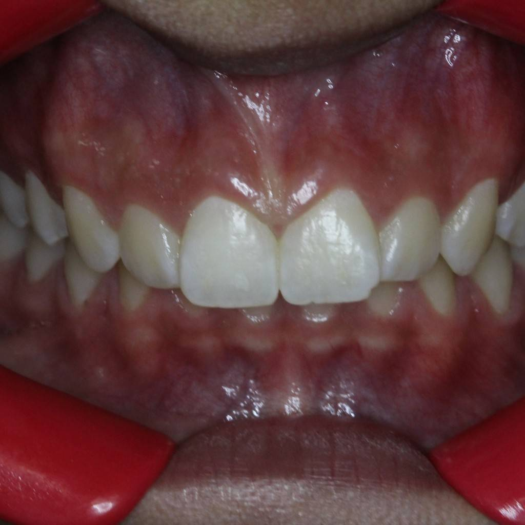Before expander and braces, narrow upper arch with a bucky appearance