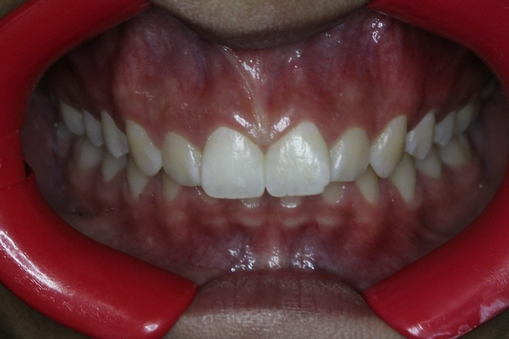 Before Braces, narrow arch and crowding