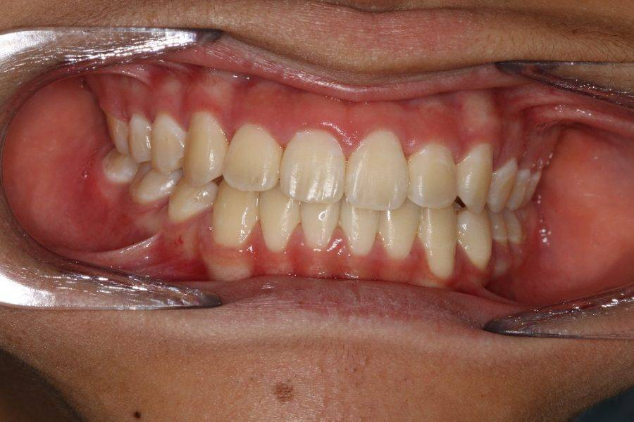 Post Braces:  Ideal overjet, overbite and centre lines
