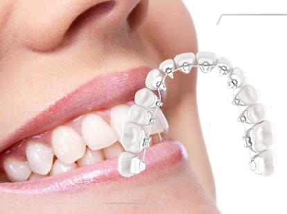 invisible_braces Lingual Braces